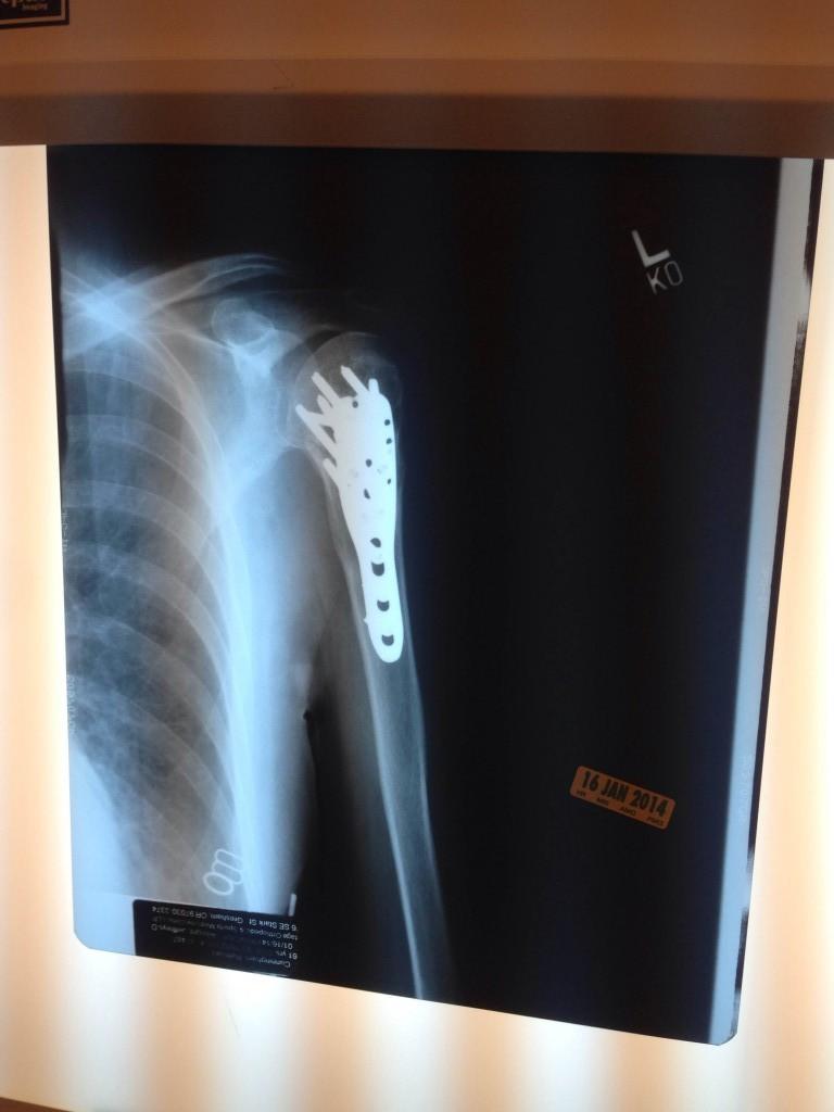 arm xray6_Bionic